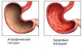 Лечение гастрита травами: эрозивного, атрофического, с повышенной и пониженной кислотностью