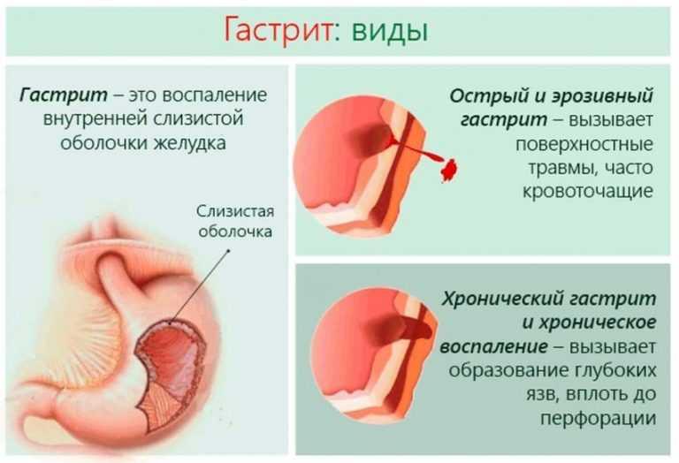 Можно ли принимать чайный гриб при язве желудка и двенадцатиперстной кишки, гастрите, повышенной и низкой кислотности. Рецепты и предостережения.