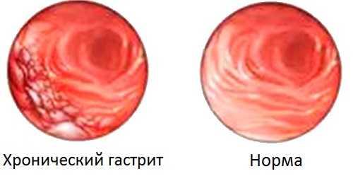 Диета при гастрите: особенности питания - блог медицинского центра он клиник
