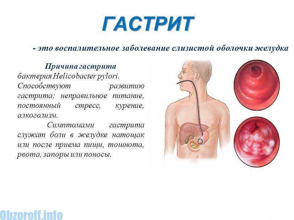 Язвенный гастрит: симптомы, лечение, диета и питание, профилактика | компетентно о здоровье на ilive